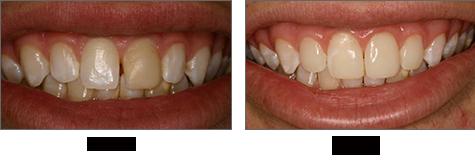 durée de vie composite dentaire