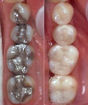 pourquoi remplacer les amalgames dentaires au mercure